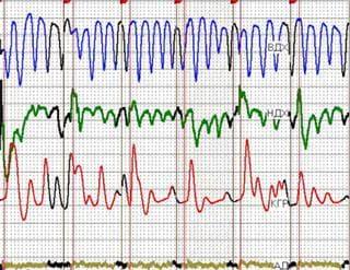 Как обмануть детектор лжи или вопросы полиграфа
